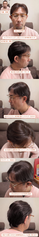 メンズフルウィッグ 男性用 全かつら 人毛ミックス MIX 総手植え製 m-14ウィッグ装着画像各種