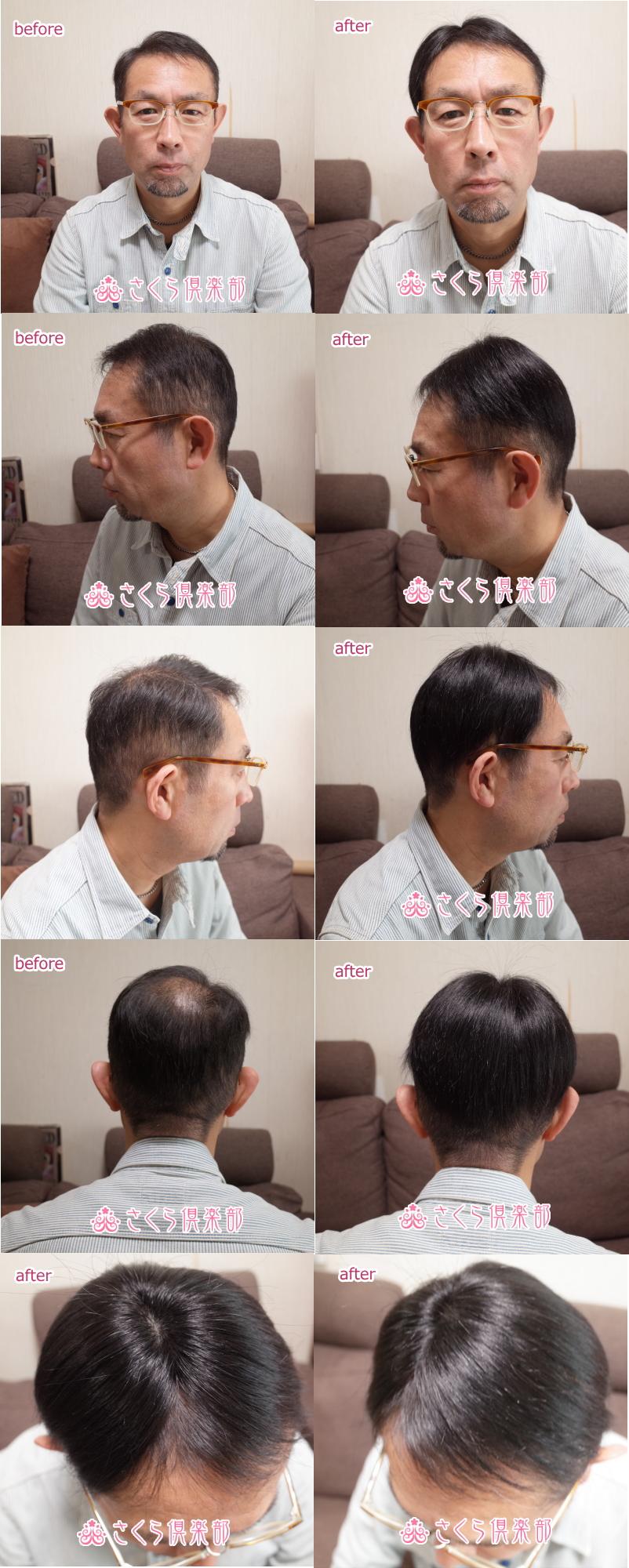 男性用メンズ部分ウィッグtop-02n取り付け前取り付け後画像