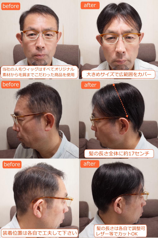 男性用メンズ部分ウィッグLサイズtop-07取り付け前取り付け後画像1