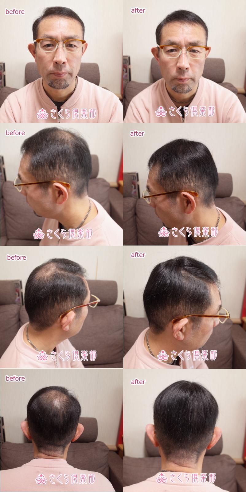 男性用メンズ部分ウィッグtop-s取り付け前取り付け後画像